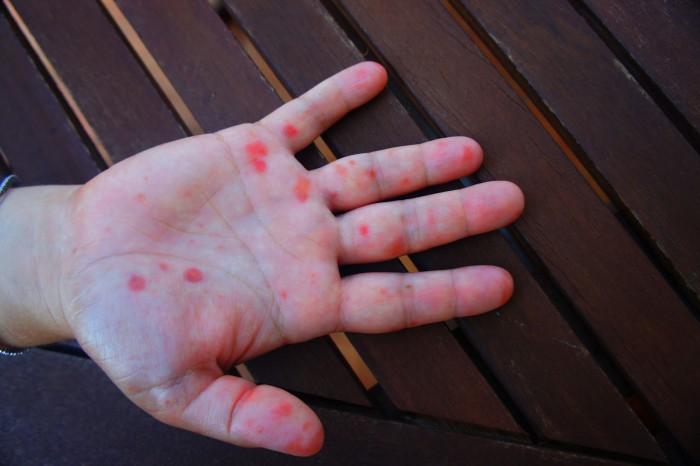 kéz láb száj betegség én hétfő